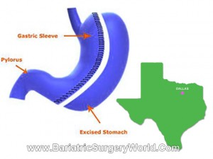 Gastric Sleeve Prices in Dallas -Texas